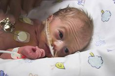 neonatal baby in intensive care a fight for life at 25 weeks Eyesight Problems, Medical Photos, Stress Factors, Obstetrics And Gynaecology, Nursing Care, Premature Baby, Emotional Stress, Nicu