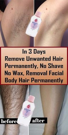 Remove Unwanted Hair Permanently In Three Days , No Shave No Wax, Removal Facial. - - Remove Unwanted Hair Permanently In Three Days , No Shave No Wax, Removal Facial & Body Hair - Beauty Makeup Hacks Ideas Wedding Makeup Looks for Wome. Permanent Hair Removal Cream, Leg Hair Removal, Hair Removal Remedies, Hair Removal Methods, Natural Hair Removal, Removal Tool, Razor Burn Remedies, Laser Hair Therapy, Electrolysis Hair Removal