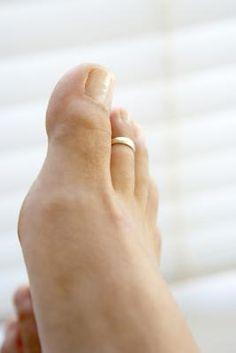 La historia del anillo del dedo del pie | eHow en Español