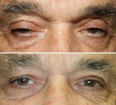 Dr. John Burroughs, Colorado Springs Ophthalmic Plastic Surgeon, Shares A Before and After Ptosis Repair Patient.  John Burroughs, MD PC Surgery Eyelids, Face, and Orbits Colorado Springs, Pueblo, Canon City 719-473-8801