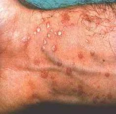 All There Is To Know About #Lichen #Planus