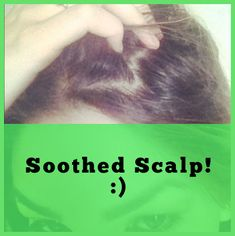 Home Dandruff Remedies ~ soothed scalp remedy Natural Itchy Scalp Remedy 1 Minute Cure! Itchy Dry Scalp Remedy, Itchy Head, Hair Remedies For Growth, Hair Growth, Coconut Oil For Skin, Prevent Hair Loss, Hair Health, Grow Hair, The Cure