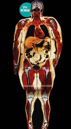 Crushed lungs, strained joints and a swollen heart - the extraordinary scans that reveal what being fat does to you - An Excellent article.