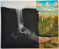 embroidered X-rays by Matthew Cow