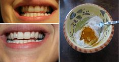 This Turmeric Anti-Inflammatory Paste Will Reverse Gum Disease, Swelling, And Kill Bacteria (as well as whitening your teeth) Gum Health, Dental Health, Oral Health, Dental Hygiene, Health Care, Pasta Dental Casera, Turmeric Anti Inflammatory, Turmeric Paste, Healthy Holistic Living