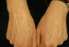 Age Spots on Hands Causes, Treatment & Removal - eTopical Freckles On Hands, Getting Rid Of Freckles, Skin Care Regimen, Skin Care Tips, Beauty Skin, Health And Beauty, Scaly Skin, Moisturizer With Spf, Beauty