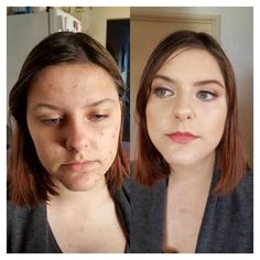 12 Acne Before and After Makeovers That Truly Transformed These Women