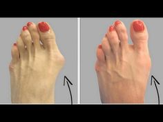 WHY DO DOCTORS KEEP THIS SIMPLE RECIPE AWAY FROM THE PUBLIC? HERE'S HOW TO GET RID OF BUNIONS COMPLE - YouTube
