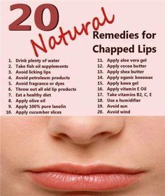 Natural Remedies for Chapped Lips! I'm gonna be glad I pinned this bc my kiddos get such chapped lips every yr shortly after school starts bc their school is so damn dry!