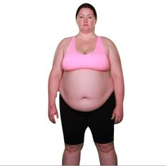 204 Best My Time On Extreme Weight Loss Images Extreme Weight Loss
