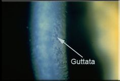 Cornea guttata refers to little areas of collagen that collect abnormally at the back of the eye due to a growth abnormality of the cells at that location. These lumps can interfere with light transmission. If enough cells are affected, the cornea may become swollen, causing vision problems. Fuch's dystrophy, surgery to remove cataracts, and injury to the eye are some potential causes of cornea guttata.