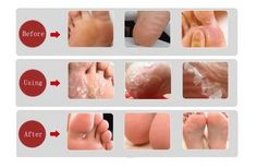Having problems with feet is not a pleasant thing especially when summer arrives and you always want to expose some beautiful feet. But what can you do about dead skin,