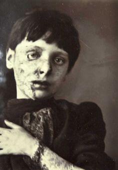 Nipper Morgan before treatment. Victorian Skin Complaints – Wakefield Asylum