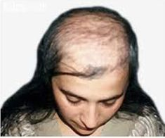 Androgenetic Alopecia, Grow Thicker Hair, Guter Rat, Hair Loss Causes, Bald Hair, Male Pattern Baldness, Extreme Hair, Hair Loss Women, Hair Raising