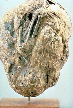 Lithopedion Calcified Fetus. Remained inside woman for over 50 years.