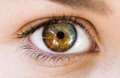 sectoral heterochromia   Tumblr
