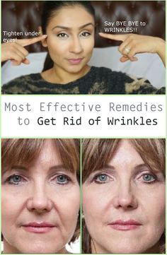 Acne Treatment Solutions: Most Effective Remedies to Get Rid of Wrinkles