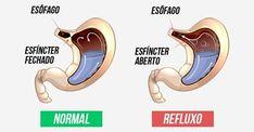 Os principais remédios caseiros para tratar refluxo são feitos a partir de alimentos que neutralizam a acidez do estômago e diminuem a agressão do esôfago, como limão e vinagre de maçã. O refluxo ocorre quando o líquido ácido do estômago sobe para o esôfago, causando sensação de dor e queimação p