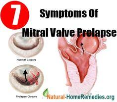Top 7 Symptoms Of Mitral Valve Prolapse Mitral Valve Regurgitation, Home Remedies, Natural Remedies, Mitral Valve Prolapse, Nursing Information, Heart Health, Heart Disease, Study Tips, Health Care