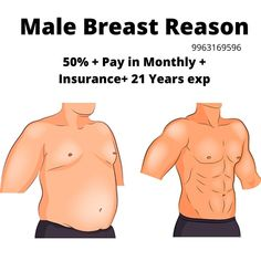 Gynecomastia surgery cost in Hyderabad, 09 Male breast surgery treatment Pay-in-monthly starting price cost and insurance and cashless treatment gynecomastia surgery Tricyclic Antidepressant, Extra Skin, Plastic Surgery Procedures, Female Hormones, Tummy Tucks, Hormone Imbalance, Hyderabad, Factors