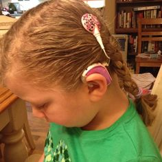 Advanced Bionics Cochlear Implant Naida Decorated with sparkle tape