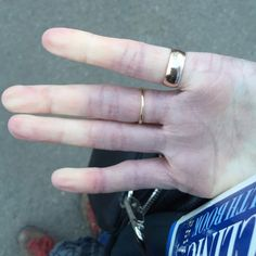 hand showing fingers due to raynaud's syndrome
