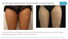 CoolSculpting Treatment for tights at Trifecta Med Spa NYC