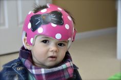 Dot and Bow Cranial Band DOC band/helmet  https://www.facebook.com/pages/Cranial-BandsMurals-by-Leigh-Gibson/153150921414230