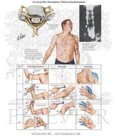 Cervical Disc Herniation: Clinical Manifestations