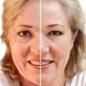 ¡El bicarbonato suaviza las arrugas mucho mejor que el Botox! Todas las mañanas…