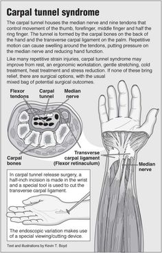Information graphic about carpal tunnel syndrome and advice on repetitive strain injury, including links to acupressure points for wrist pain. Health Facts, Health Tips, Carpal Tunnel Exercises, Repetitive Strain Injury, Median Nerve, Wrist Pain, Health Infographics, Carpal Tunnel Syndrome, Tennis Elbow