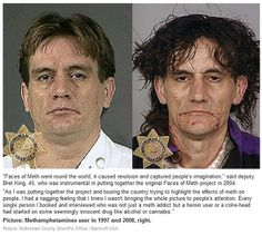 ✨ Faces of meth addicts