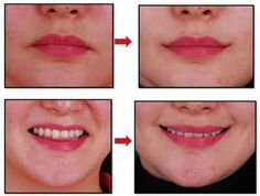 Plastic Surgery That Forces You To Smile Uncontrollably Is All The Rage Among South Korean Women Korean Surgery, Extreme Plastic Surgery, Korean Plastic Surgery, Excessive Underarm Sweating, South Korean Women, Muscle Disorders, Best Lip Gloss, Botox Injections, Cosmetic Procedures