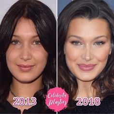 Bella Hadid plastic surgery: Before and after Botox Before And After, Rhinoplasty Before And After, Celebrities Before And After, Plastic Surgery Before After, Bad Plastic Surgeries, Plastic Surgery Photos, Nose Plastic Surgery, Botox Brow Lift, Eyebrow Lift