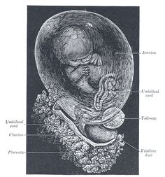 Gray30 - Placenta / Fetus (Cetus),the galactic whale in the outer spacious sea,constellation-filled sky acts as placenta,Prince Salim's rage destroys it,Fetus awakens and consumes all first-born souls.