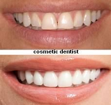cosmetic dentist in vancouver  http://www.apsense.com/article/cosmetic-dentistry-sector-woos-women.html