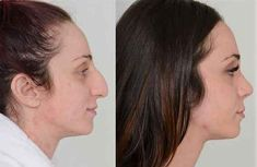 Check out one of my patient's images! Notice the im. Rhinoplasty Before And After, Nose Plastic Surgery, Nose Surgery, Beauty Makeup, Hair Makeup, Hair Beauty, Chin Liposuction, Nose Reshaping, Beauty Tips
