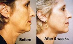 10 Neck tightening exercises to get rid of neck wrinkles, a turkey neck, sagging jowls and a double chin naturally and without surgery. Get a younger and firm neck with a proper skin care routine that incorporates great exercises. Massage Facial, Facial Yoga, Facial Hair, Tighten Neck Skin, Neck Wrinkles, Too Faced, Skin Tightening, Face Skin, Healthy Skin