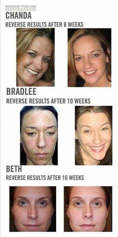 How to get Rid Of Black Spots on Face #CreamForBrownSpots #CanBrownSpotsBeRemoved #WhatCausesBrownSpotsOnSkin #BrownSpotsOnSkin