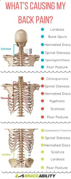 Whats causing your back pain? Learn about the many lower, middle, upper back conditions that can occur to your spine cause you discomfort. | BraceAbility
