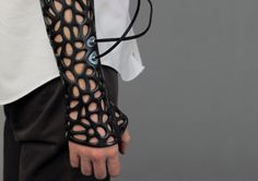 The Osteoid, created by Turkish student Deniz Karasahin, incorporates 3D printing and ultrasonic tech to make healing a broken bone more bearable.
