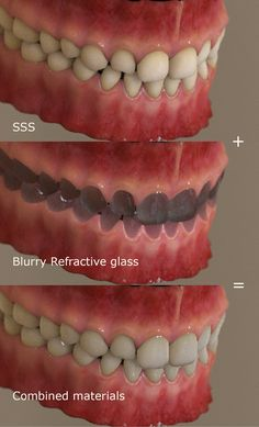 3D Teeth  Alex- Portrait of a Young Woman - Page 8