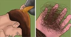 Solid Guide On How To Prevent Hair LossIf you want to understand and even manage your hair loss, you need to educate yourself about it. Losing most of your hair Hair Loss Causes, Prevent Hair Loss, Male Pattern Baldness, Hair Loss Women, Stop Hair Loss, Hair Loss Remedies, Hair Loss Treatment, Hair Repair, Grow Hair
