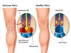 Get Rid of Varicose Veins in Just Three Days