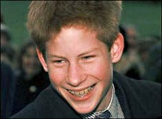 Even Royalty had braces - Prince Harry