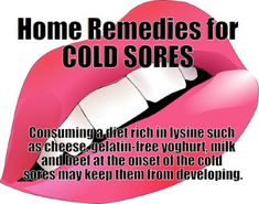 Stuffy Nose Remedies Cold Sore Remedies - Controlling the Herpes Virus Lip Blister Cold Sore Treatment, Home Remedies For Herpes, Cold Home Remedies, Natural Remedies, Cold Sore Stages, Cold Sore Symptoms