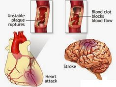 Foods to Help Prevent Heart Disease and Stroke! - One Healthy Spot