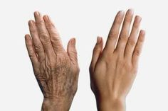 Las manchas delas manos suelen aparecer con la edad. Pero también hay otros factores que favorecen su aparición, como puede ser el sol. Como ya sabemos, resta bastante nuestra belleza natural y, en ocasiones, gastamos bastante dinero en tratamientos para eliminar estas imperfecciones. ¿Quieres conocer entonces remedios más fáciles y económicos? 1. Gel de áloe …