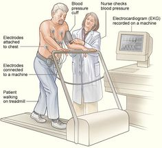 Stress Test for Heart Palpitations