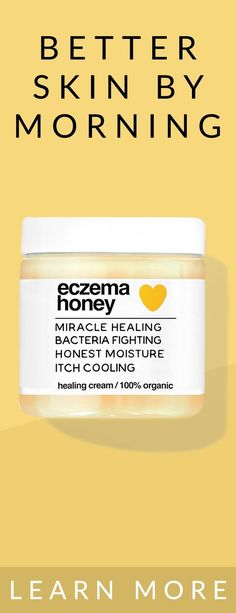 a4e9ca7981 Want to live your life without the daily struggles of eczema  Made with  pure honey